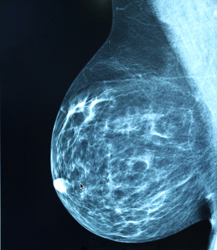 Study Into Radiation Therapy For Breast Cancer Suggests That Different Health Insurance Systems, Social Factors Influence Cancer Treatment Decisions