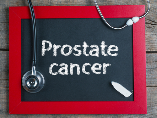 Prostate cancer and radiotherapy