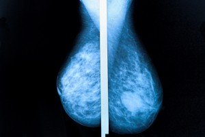 dense breast tissue