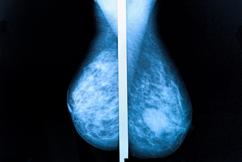 New Breast Cancer Screening Technology Benefits Women with Dense Breast Tissue