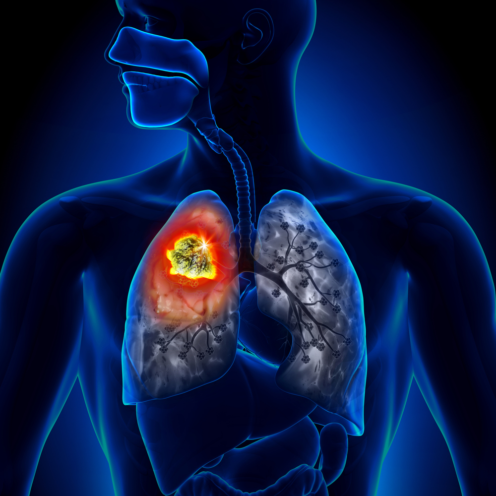 Stereotactic Body Radiation Therapy Improves NSCLC Patient Survival
