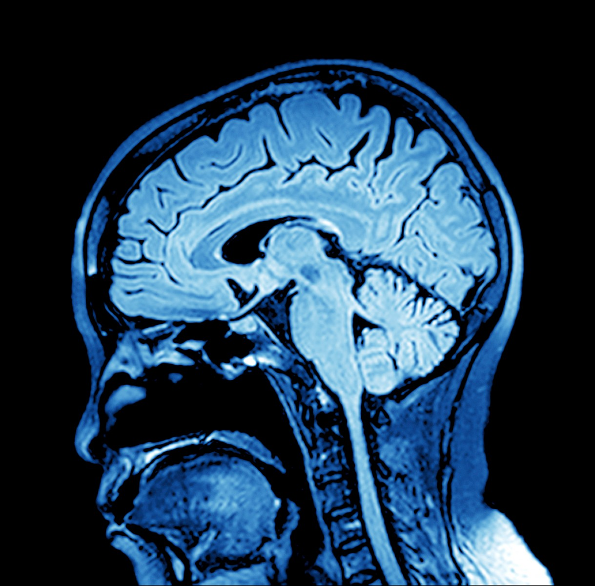 Whole Brain Radiation Therapy Poses Threat to Cognitive Function